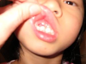 Belle's Gum